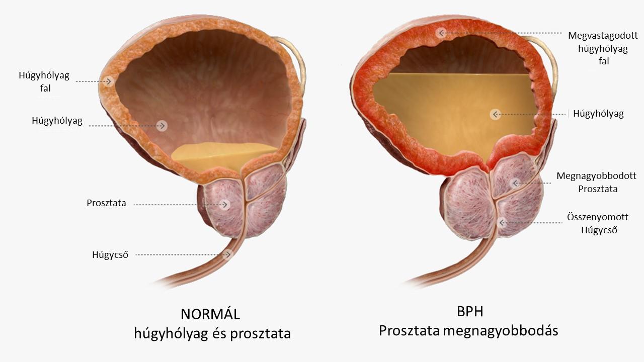 dülmirigy jóindulatú daganata